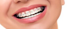つくばの矯正歯科治療