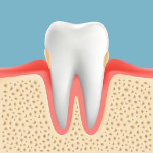 歯肉炎 G