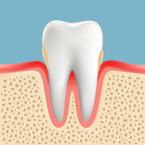 歯周病治療 P1 軽度