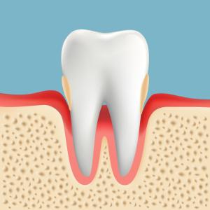 歯周病治療 P2 中度