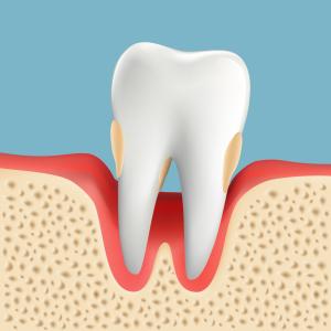 歯周病治療 P3 重度