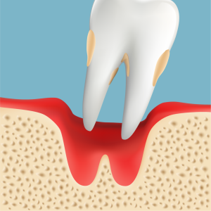 歯周病 脱落