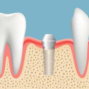 インプラントが骨と結合したら、再度歯茎を開き、インプラントの頭を出します。