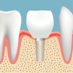 つるみ矯正歯科のインプラント手術
