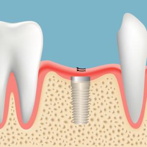 つるみ矯正歯科のインプラント治療