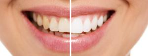 つくばで歯を白くしたいなら つるみ矯正歯科