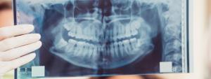 レントゲンによる口腔疾患の説明