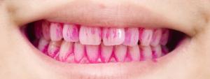 歯垢染色液を使用したブラッシング指導