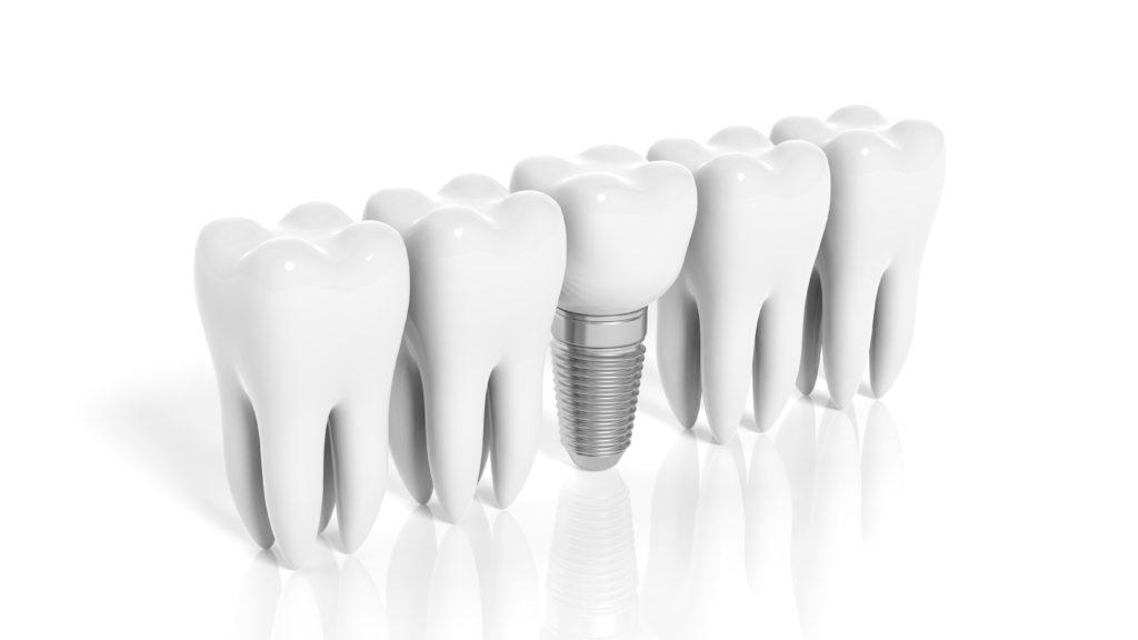 インプラント_つるみ矯正歯科_dental_implants