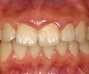 初期の歯周炎
