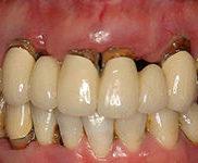 重度歯周病(歯槽膿漏)