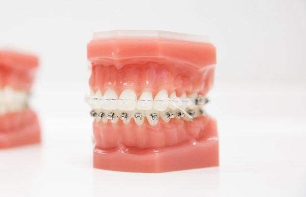 つくば駅のつるみ矯正歯科 歯並び治療症例