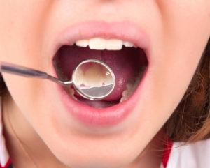 つくばの歯医者 子供の歯並び矯正治療