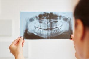 矯正治療の抜歯と非抜歯ケース
