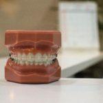 歯列矯正中の痛み_つくばのつるみ矯正歯科